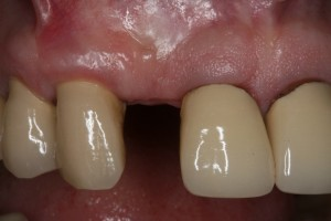 research paper dental implants