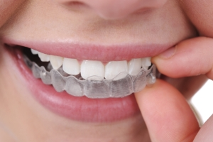 Invisalign Clear Braces in Houston